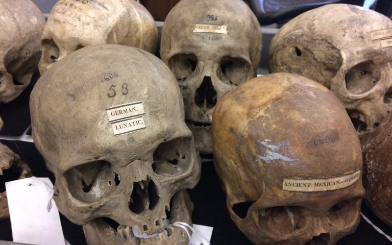 Skulls and Skin (Seeing White, Part 8)