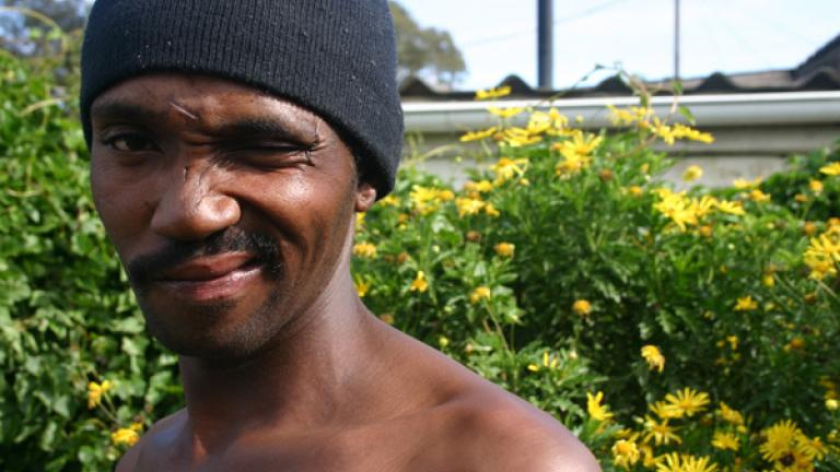 The scars of apartheid can still be seen in the high rates of unemployment, alcoholism, and violence in the townships.